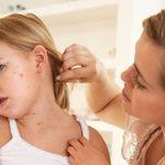 Trẻ mắc bệnh thủy đậu bao lâu thì khỏi hẳn và không cần cách ly?