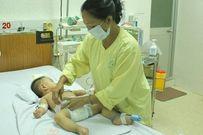 Viêm màng não mô cầu: Bệnh dễ phát, nguy hiểm cao, cẩn thận đề phòng