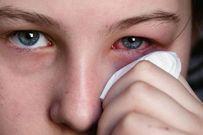 Chuyên đề các bệnh về mắt ở trẻ