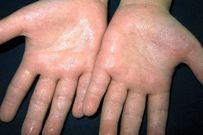 5 bài thuốc dân gian giúp bạn trị dứt chứng ra mồ hôi tay chân