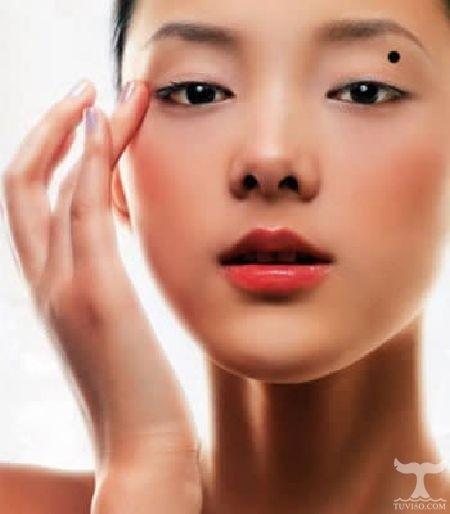 Nốt ruồi khai vận mọc ở vị trí giữa mắt và lông mày