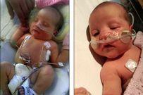 Sức sống kì diệu của bé gái khi sinh ra chỉ có 35ml máu trong người
