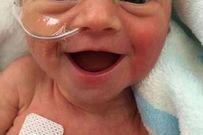 Nụ cười toe toét của em bé sinh non 5 ngày tuổi truyền cảm hứng khắp thế giới