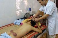 Bé trai 12 tuổi bị mẹ kế dùng chày đánh trọng thương phải nhập viện
