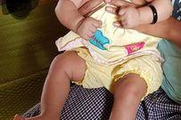 Bộ Y tế xác nhận em bé Việt Nam đầu tiên mắc chứng đầu nhỏ do virus Zika