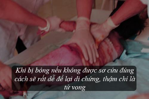 chuyen-gia-huong-dan-cach-so-cuu-don-gian-hieu-qua-khi-tre-bi-bong-bong2.jpg