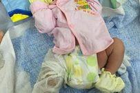 Mổ lấy thai, một bé sơ sinh bị gãy xương đùi ở Hưng Yên