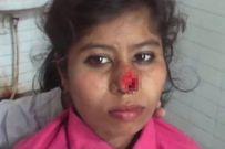 Chồng cắn đứt mũi vợ vì gia đình vợ không chịu đáp ứng yêu cầu của hồi môn