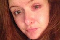 Cô gái 23 tuổi suýt bị mù mắt vì sai lầm khi đeo kính áp tròng