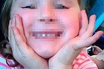 Người đàn ông bại não ở Úc tấn công bé gái 5 tuổi vì ham muốn tình dục