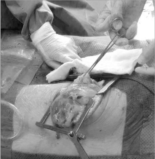nam thanh nien 18 tuoi phai mang khoi u nang 7kg trong long nguc untitled 1.jpg