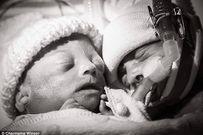Hình ảnh 7 ngày cuối cùng của bé trai mắc hội chứng truyền máu song thai gây xúc động
