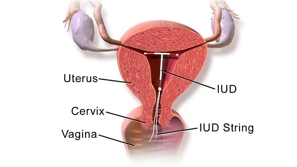 vong tranh thai