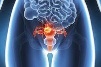 Bị u nang buồng trứng có chữa khỏi và sinh con được không?