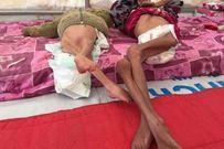 Nhìn vào những bức ảnh trẻ em này ai cũng rùng mình bởi sự thật thảm khốc của chiến tranh