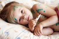 Trẻ bị thủy đậu rồi có bị lại không và cách phòng ngừa bệnh thủy đậu