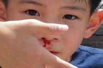 Tìm hiểu nguyên nhân và cách xử lý khi trẻ bị chảy máu cam